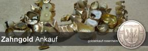 Zahngold Ankauf Rosenheim - Zahngold verkaufen bei Goldankauf-Rosenheim.de