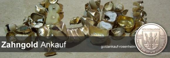 Zahngold Ankauf in Rosenheim: Wir kaufen Zahngold / Dentalgold auch mit Zahnresten und ungereinigt. Selbstverständlich auch Zahnlegierungen. © goldankauf-rosenheim.de